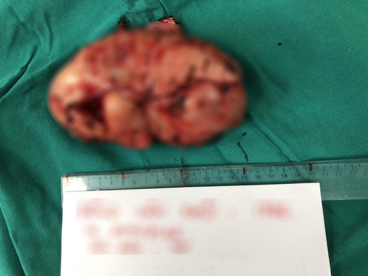 Ngực nhói đau từ nhỏ, nam thanh niên không ngờ mang khối u to như bắp chuối