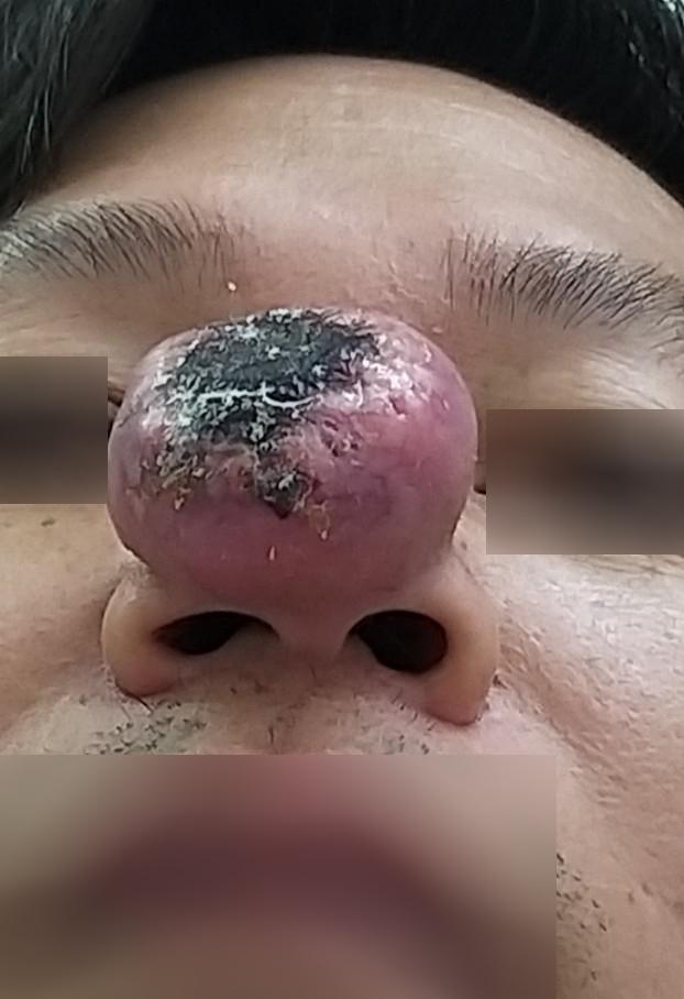 Người đàn ông sốc khi cục mụn nhỏ thành khối u buộc phải cắt bỏ mũi