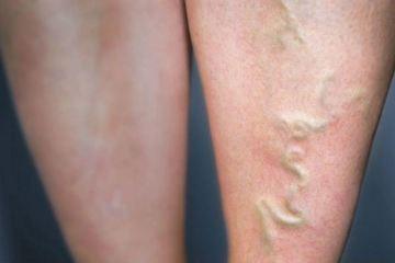 Da nổi mạch máu: Căn bệnh nguy hiểm 300 triệu người mắc