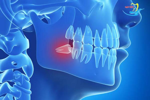 'Phát rồ' vì răng khôn mọc dại