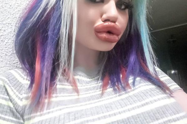 Hết hồn với đôi môi 'dày nhất thế giới' sau 20 lần phẫu thuật thẩm mỹ