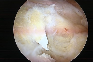 Ngã vào gương, mảnh vỡ chui vào khớp, về Việt Nam bác sĩ mới phát hiện được