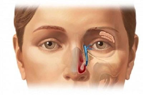 Đau nhức hai bên mắt đi khám ra ung thư tuyến lệ
