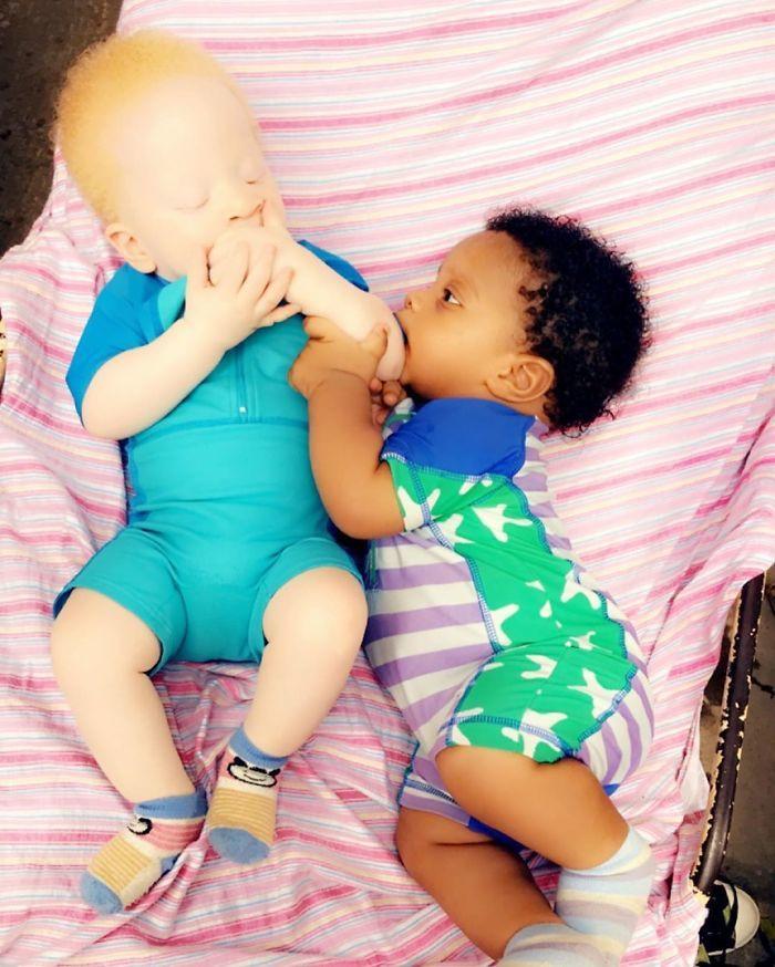 Hi hữu: bé sinh đôi có hai màu da khác nhau
