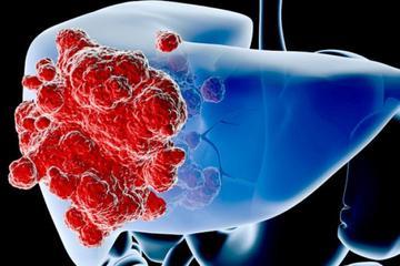 Ung thư gan - căn bệnh ung thư số 1 Việt Nam