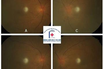Mờ mắt hẳn sau cơn tăng huyết áp: Suýt mù vì chủ quan