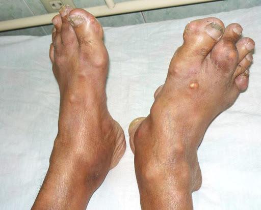 Căn bệnh nhà giàu, người Việt nghèo cũng mắc