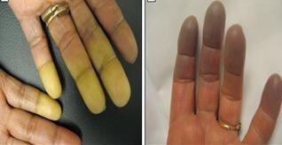 Hội chứng Raynaud – căn bệnh khoảng 4% dân số mắc mà ít người biết