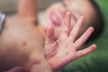 Vì sao bệnh chân tay miệng rất dễ lây với trẻ mầm non?
