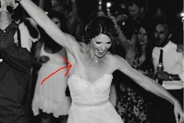 Cô dâu bất ngờ phát hiện bị ung thư nhờ bức ảnh đám cưới