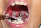 Tử vong vì bạch hầu biến chứng: Bệnh này nguy hiểm như thế nào?