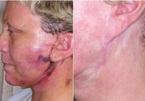 Cấy chỉ căng da mặt, người đàn bà phải 'lột mặt' để sửa sai