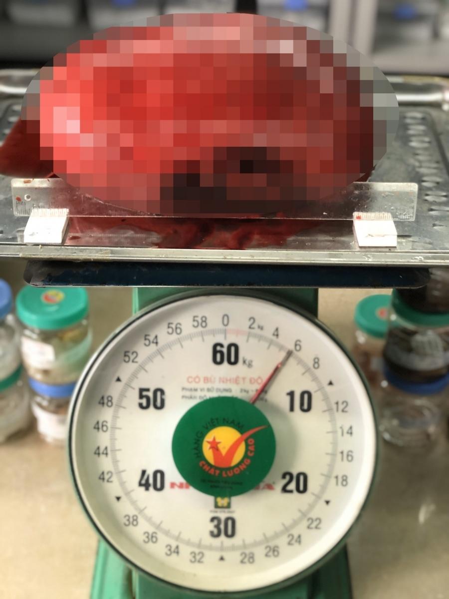 Lấy thành công khối u nặng tới 6kg cho bệnh nhân nữ
