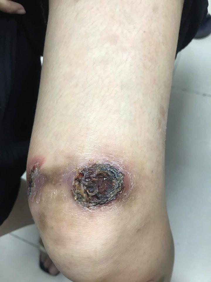 Tưởng viêm da cơ địa, hóa ung thư da xâm lấn