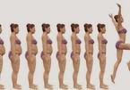 Bất ngờ châm cứu giảm béo
