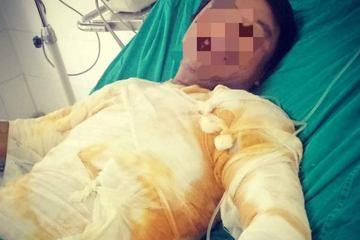 Hà Tĩnh: Đình chỉ 8 người liên quan vụ nhân viên điện lực bị phóng điện gây bỏng nặng