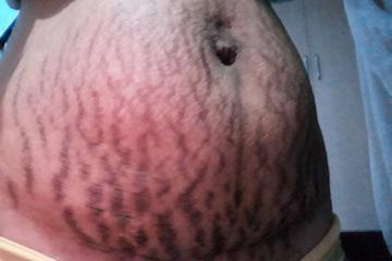 Bác sĩ da liễu chỉ cách chữa rạn da sau sinh