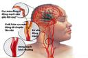 Đột quỵ trẻ hóa, cách ổn định huyết áp và phòng ngừa đột quỵ