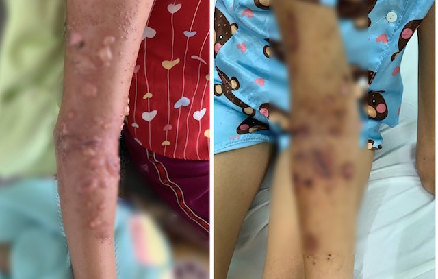 Bé 8 tuổi bị bỏng da nặng vì sứa: Cách sơ cứu nhiều người khôngbiết