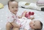 Ngày mai, mổ tách hai bé song sinh dính liền cực hiếm