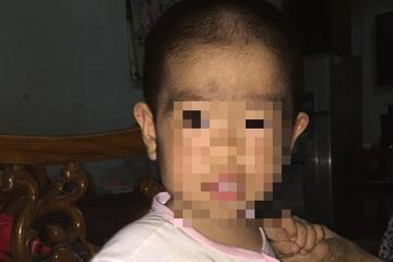Bé gái 6 tuổi ở Vũng Tàu mắc bệnh hiếm gặp, trên thế giới chỉ có 74 ca