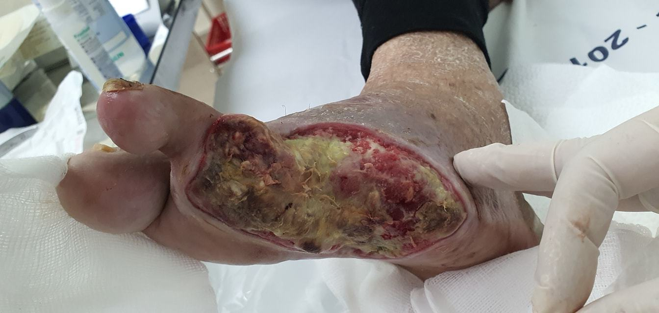 Bệnh nhân đái tháo đường bị cắt chân oan