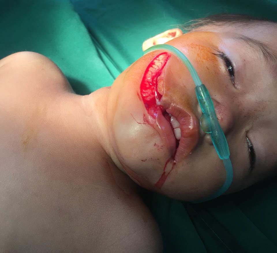 Ngã vào bát sứ, bé gái rách 7 cm trên mặt, lộ hoàn toàn cả cung lợi