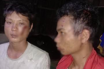 3 người dân bị đánh bầm dập, nghi Công an xã...đánh nhầm!