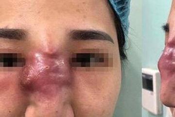 Nâng mũi không phẫu thuật, người phụ nữ ngậm quả đắng