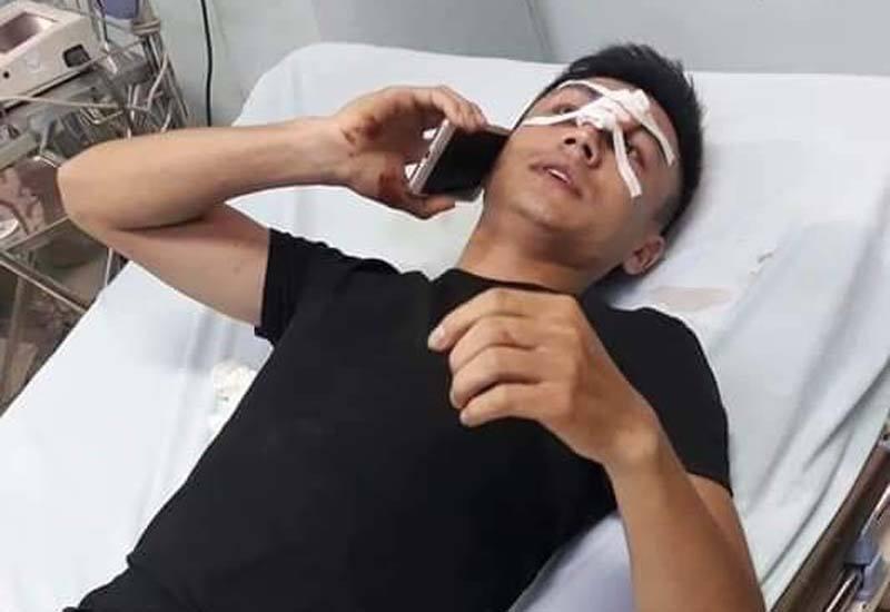 Nam thanh niên 'tự ý chảy máu mũi' sau khi giằng co điện thoại với CSGT?