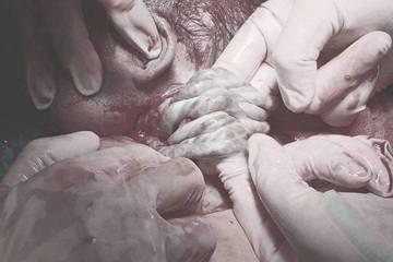Em bé chào đời với 6 vòng dây rốn quấn quanh cổ