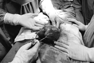 Mổ lấy khối u xơ tử cung nặng hơn 3kg cho nữ bệnh nhân