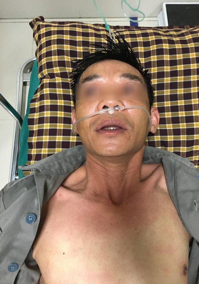 Người đàn ông 46 tuổi nguy kịch do kiến đốt