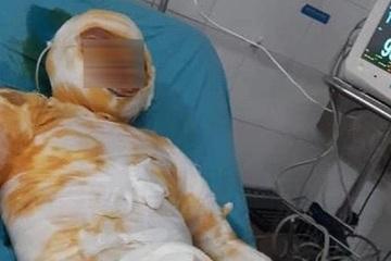 Khởi tố đối tượng tưới xăng đốt vợ ở Thái Bình