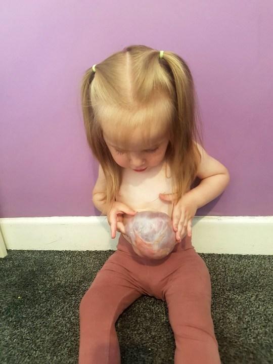 Hi hữu: Bé gái sinh ra có nội tạng bên ngoài cơ thể