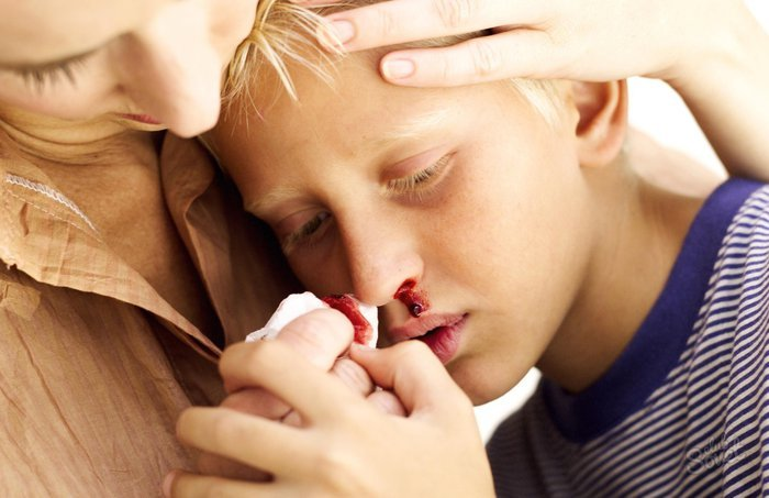 Dấu hiệu nhận biết và chế độ dinh dưỡng chiến thắng căn bệnh ung thư máu ở trẻ
