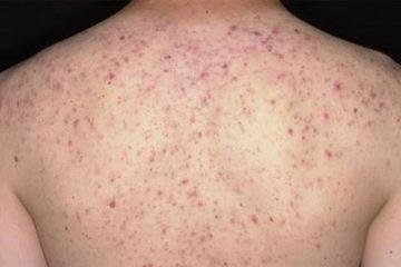 Bác sĩ mách cách điều trị viêm nang lông