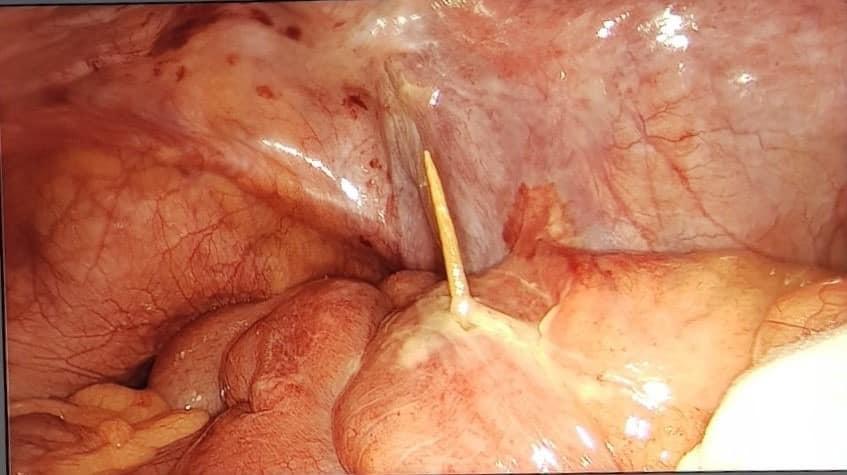 Đau bụng âm ỉ, bác sĩ tìm ra thủ phạm là cái tăm xuyên thành ruột