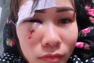 Hà Tĩnh: Cán bộ xã bị tố đấm rách mặt người phụ nữ cắt cỏ