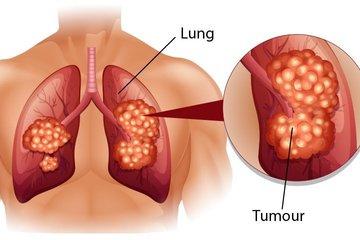 Mắc cùng lúc hai bệnh ung thư: Chuyên gia chỉ ra thủ phạm