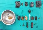 Choáng với túi nilon, bật lửa, dao lam trong dạ dày bệnh nhân