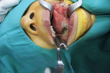 Nốt trắng ở lưỡi: Bác sĩ chỉ ra căn bệnh nguy hiểm
