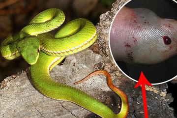 Chuyên gia chia sẻ cách sơ cứu khi bị rắn cắn