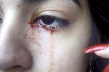 Những bằng chứng sống về hiện tượng khóc ra máu chưa có lời giải