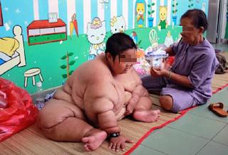 Giảm cân ngay cho trẻ nếu không muốn con mắc đái tháo đường