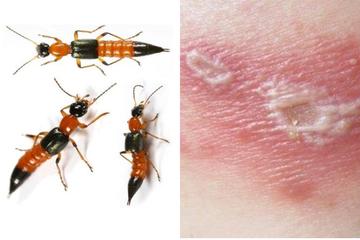 Viêm da tiếp xúc do kiến ba khoang và cách điều trị