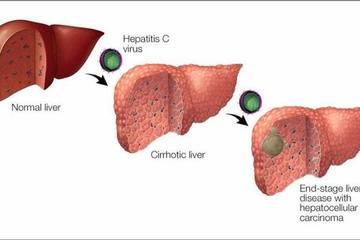 Virus viêm gan C – 'sát thủ thầm lặng' gây ung thư gan