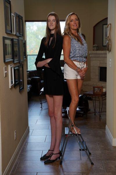 Thiếu nữ Mỹ xinh đẹp sở hữu đôi chân dài nhất thế giới