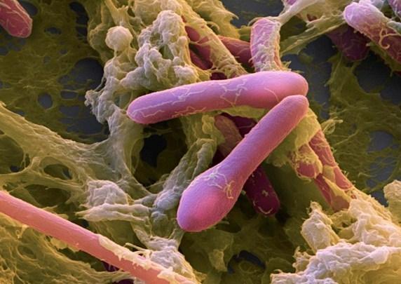 Ăn chay sao bác sĩ lại nói ngộ độc vi khuẩn độc thịt?