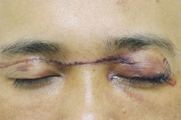 Người đàn ông bị dây diều cắt ngang hai mắt khi chạy xe trên đường